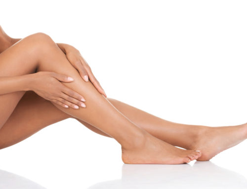 Three Things to Remember Before Your Laser Hair Removal
