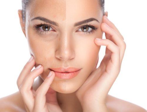Sublative Skin Resurfacing
