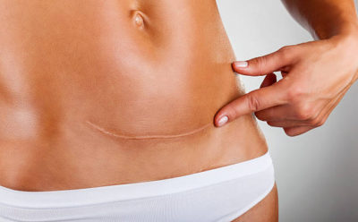 Say Goodbye to Scars with SRA | Enlighten Laser and Skin Care Clinic