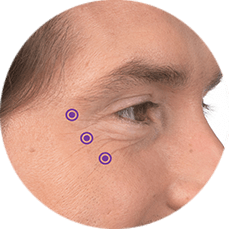 crowsfeet botox for men calgary