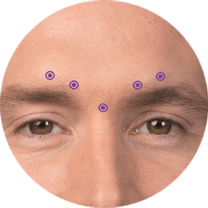 frownlines botox for men calgary