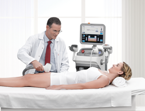Calgary Laser Treatments