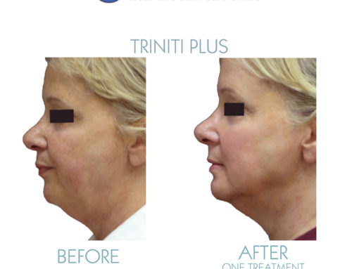 The best skin treatment for your buck: triniti Plus