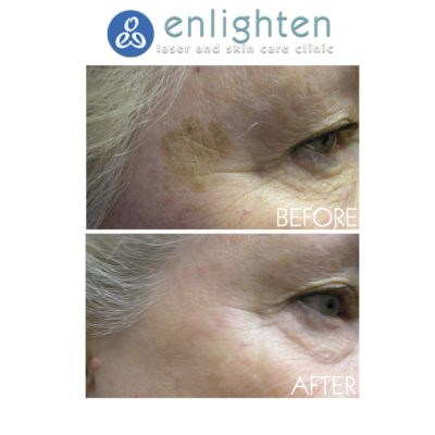 enlighten laser removing birthmarks
