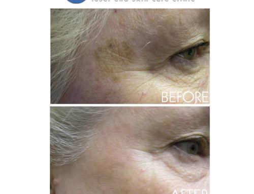 IPL Photorejuvenation for Birthmarks